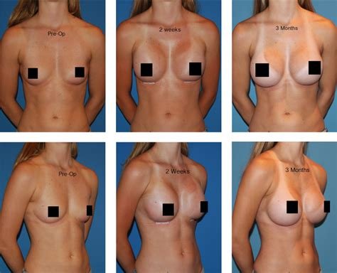 recovery time after breast surgery jpg 723x586