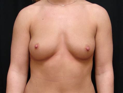 Find a breast augmentation doctor in virginia beach, va jpg 701x533